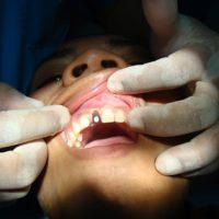 Implants16