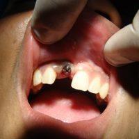 Implants19