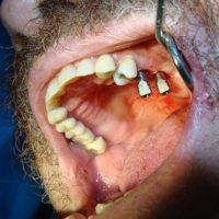 Implants27