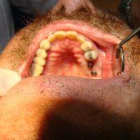 Implants36