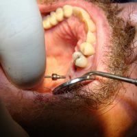 Implants38