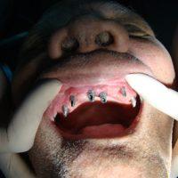 Implants51