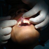 Implants7