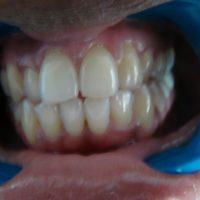 teeth whitening14