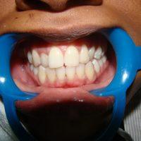 teeth whitening15
