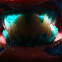 teeth whitening16