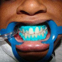 teeth whitening17