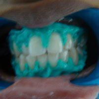 teeth whitening18
