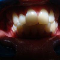 teeth whitening25