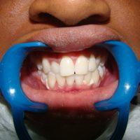 teeth whitening26