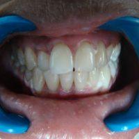 teeth whitening27