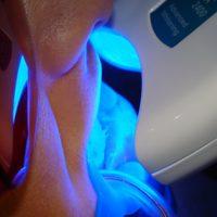 teeth whitening4