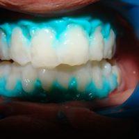 teeth whitening8